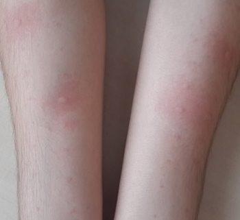 alerji testi