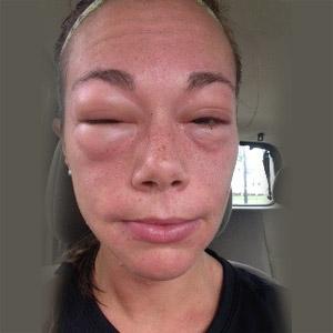 alerji doktoru