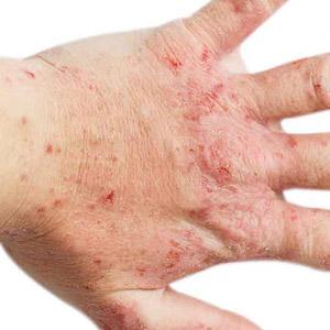 atopik-dermatit8