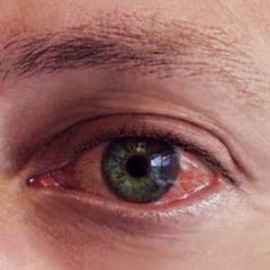 göz alerjisi